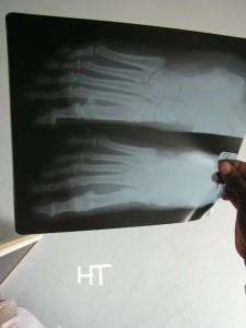 Les pieds de Paloulou en image